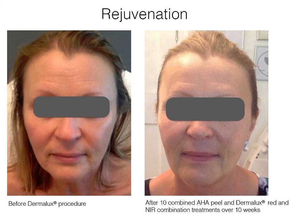 dermalux skin treatments Sheffield